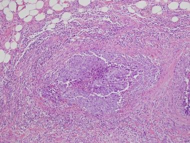Embryonal carcinoma extending into paratesticular