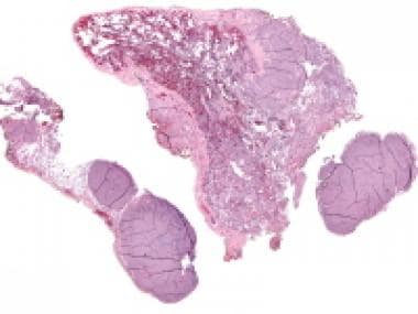 Metastatic granulosa cell tumor to the lung (H&E,
