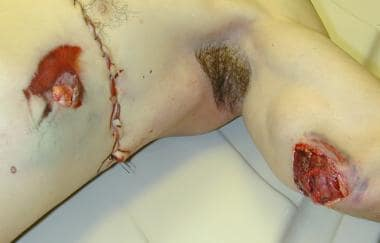 Re-entrant gunshot wound, passing first through th