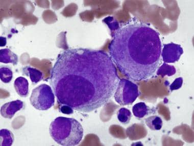 Small, hypolobated megakaryocytes are typical of m