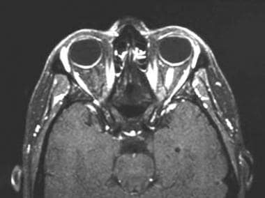A 43-year-old woman with acute vision loss and eye