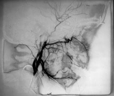 External carotid angiogram in a 10-year-old boy wi