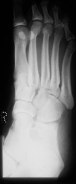 Fractured metatarsals. Oblique view of a normal fo
