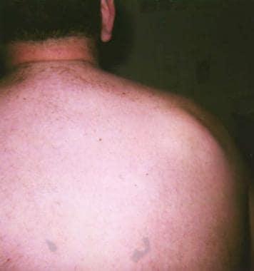 Cutaneous Lipomas Clinical Presentation: History, Physical Examination