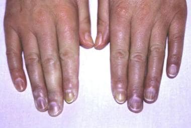 Raynaud phenomenon of the hands: Symmetrical acral