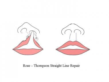 The Rose-Thompson repair involves curved or angled