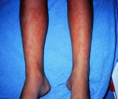 Urticaria associated with a drug reaction.