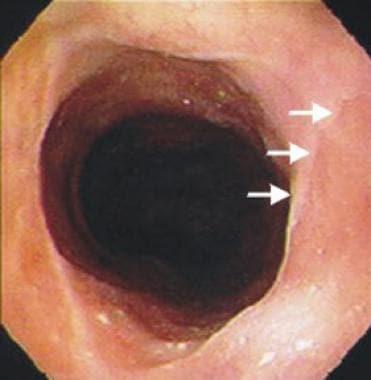 Postcricoid esophageal web and an inlet patch (arr