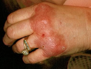 Erythema elevatum diutinum, a rare cutaneous vascu