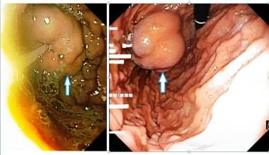Fundal varices seen on endoscopic examination of t