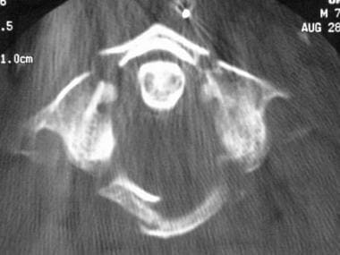 Axial CT scan of a Jefferson fracture.