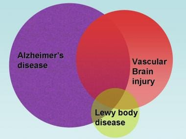 Dementia pathology. Comorbid brain pathologies are