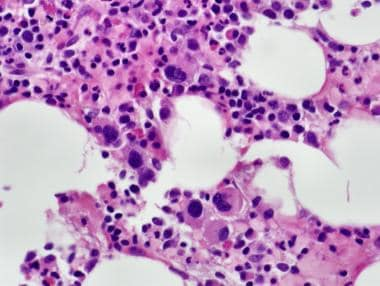 Normocellular bone marrow with trilineage hematopo