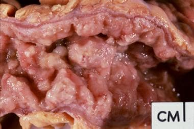 Gross pathology specimen from a case of pseudomemb