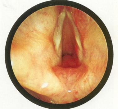 Endoscopic picture of subglottic hemangioma. Used