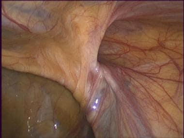 Laparoscopic inguinal hernia repair: TAPP. Right i