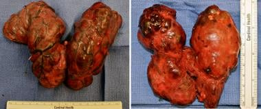 Thyroid specimens from substernal thyroidectomy.