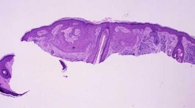 Tumor of the follicular infundibulum.