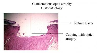 Glaucomatous optic atrophy histopathology.