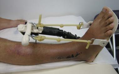 External fixator stabilizing pilon fracture. Swell