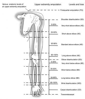 The various levels of an upper extremity amputatio