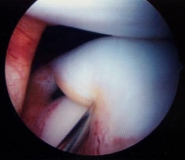 Arthroscopic appearance of complete discoid latera