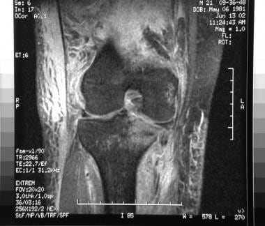 Knee dislocations. MRI showing significant disrupt