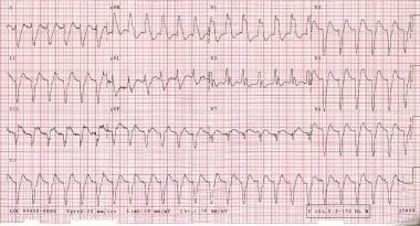 Cardiogenic shock. A 63-year-old man was admitted