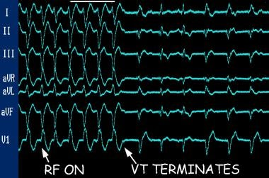 Curative ablation of ventricular tachycardia (VT).