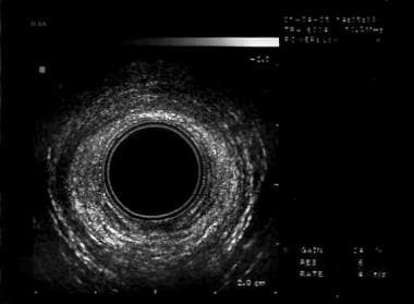 Fecal Incontinence Workup: Laboratory Studies, Imaging