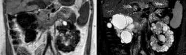 T1- and T2-weighted MRIs demonstrating a superior