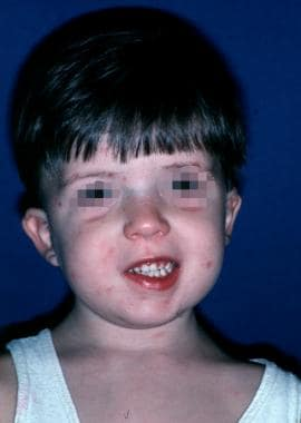 Child with velocardiofacial syndrome. Characterist