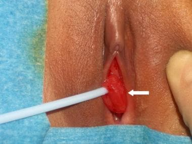 Urethral prolapse (arrow).
