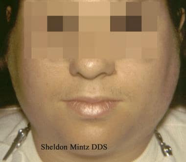 This patient with mumps has marked bilateral swell