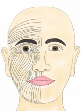 Skin tension lines of the face. An incision or a w