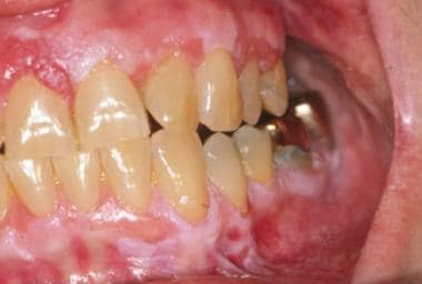 Proliferative verrucous leukoplakia of the gingiva