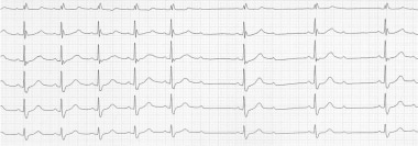 A constant PP interval and normal PR interval in c