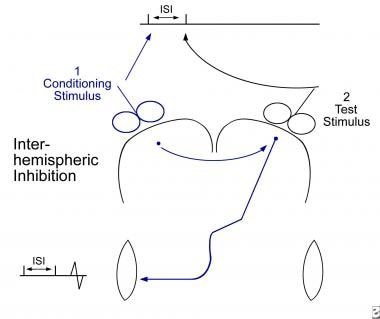 Interhemispheric conditioning study. A conditionin