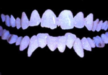 Frontal view of Ted Bundy's teeth.