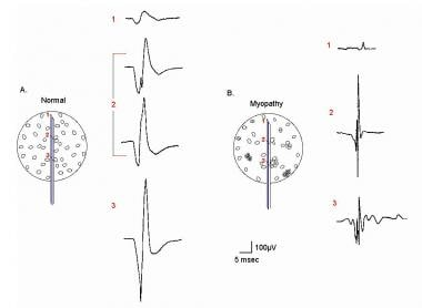 Electromyographic (EMG) evaluation of the motor un