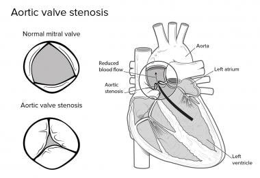 Aortic stenosis.