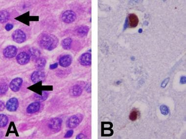 Dementia pathology. A: Hematoxylin and eosin stain