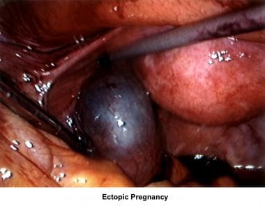 Infertility. Ectopic pregnancy. Image courtesy of
