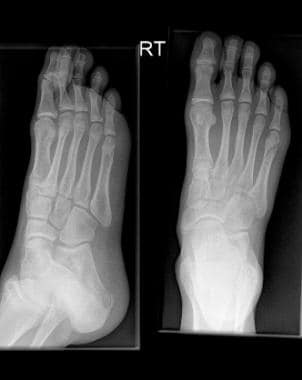 Fractured metatarsals. Spiral fracture through the