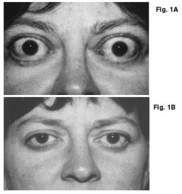 Frontal views of patient, taken (A) preoperatively