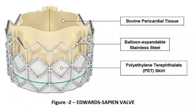 Transcatheter aortic valve replacement (TAVR). Edw