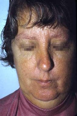 Clinical image of the face of a patient with Cowde