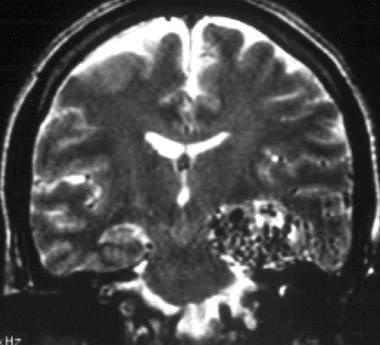 T2 coronal MRI showing an arteriovenous malformati