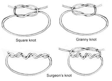 Knot types.