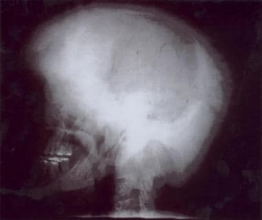 Plain skull radiograph in a typical McCune-Albrigh